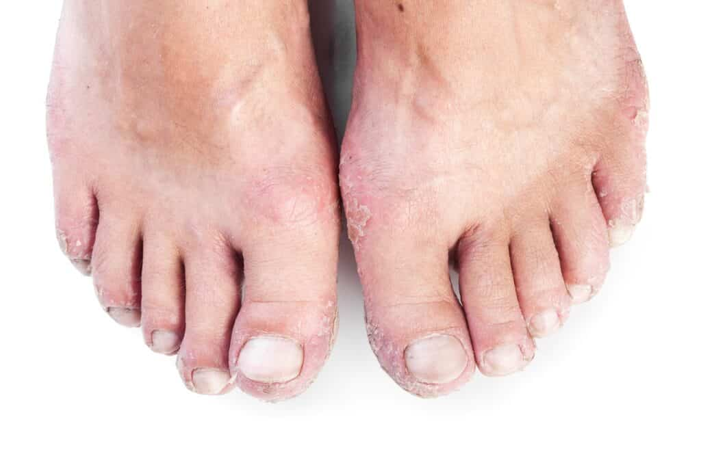 foot Skin Conditions
