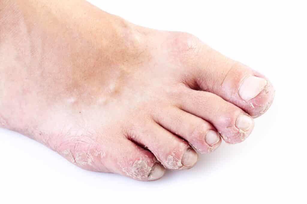 psoriasis feet