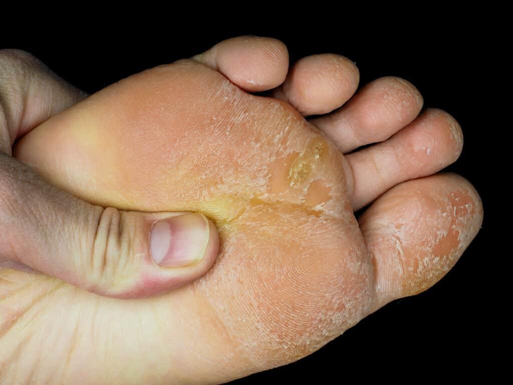 Skin peeling off from under foot