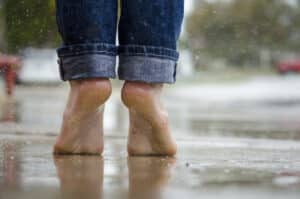 Why Your Feet and Toes are Peeling