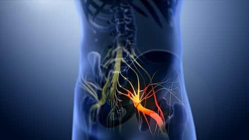 3D still showing Sciatica nerve