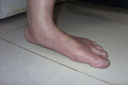 foot atrophy