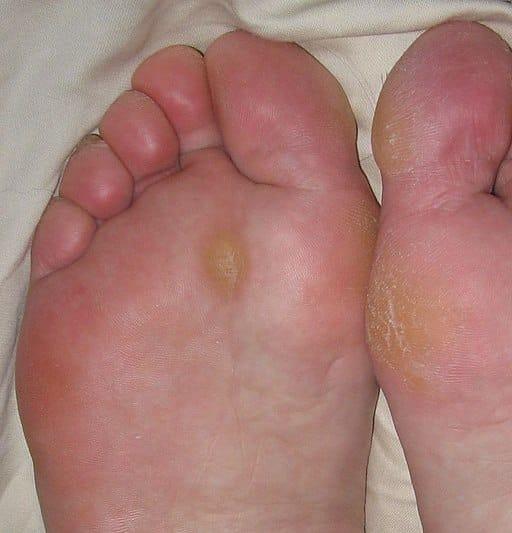 calluses