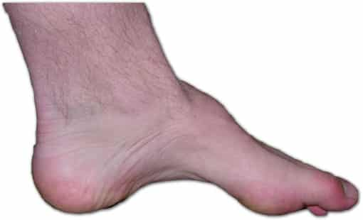arching foot