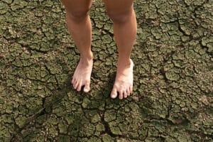 dry feet skin